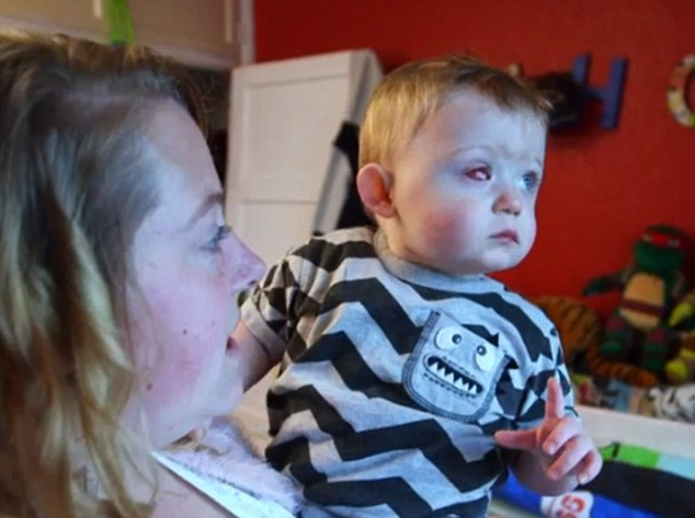 Toddler loses eye from drone accident