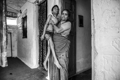Children of the Bhopal Gas Leak