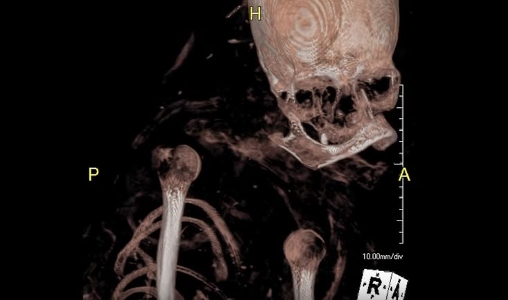 ct scan ancient egyptian mummy