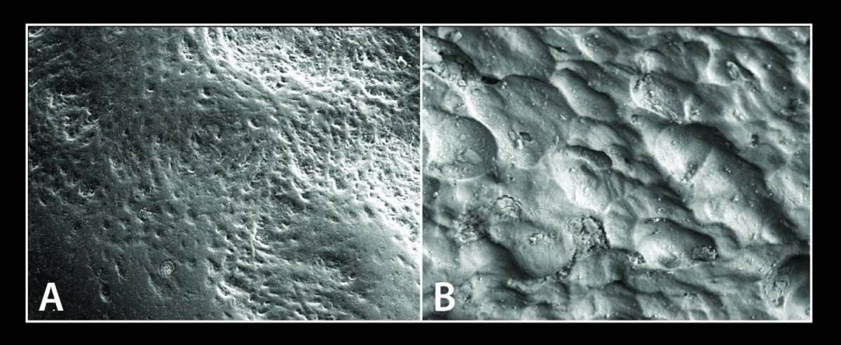 Osteoclast cells and osteoblasts