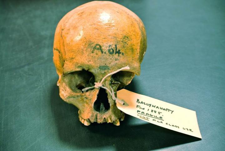 Neolithic skull