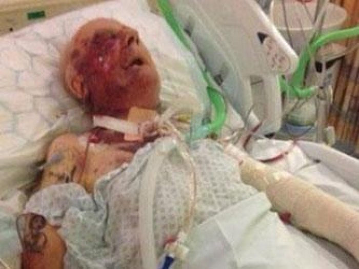 Tommy Ward, former soldier left for dead by burglars who beat him