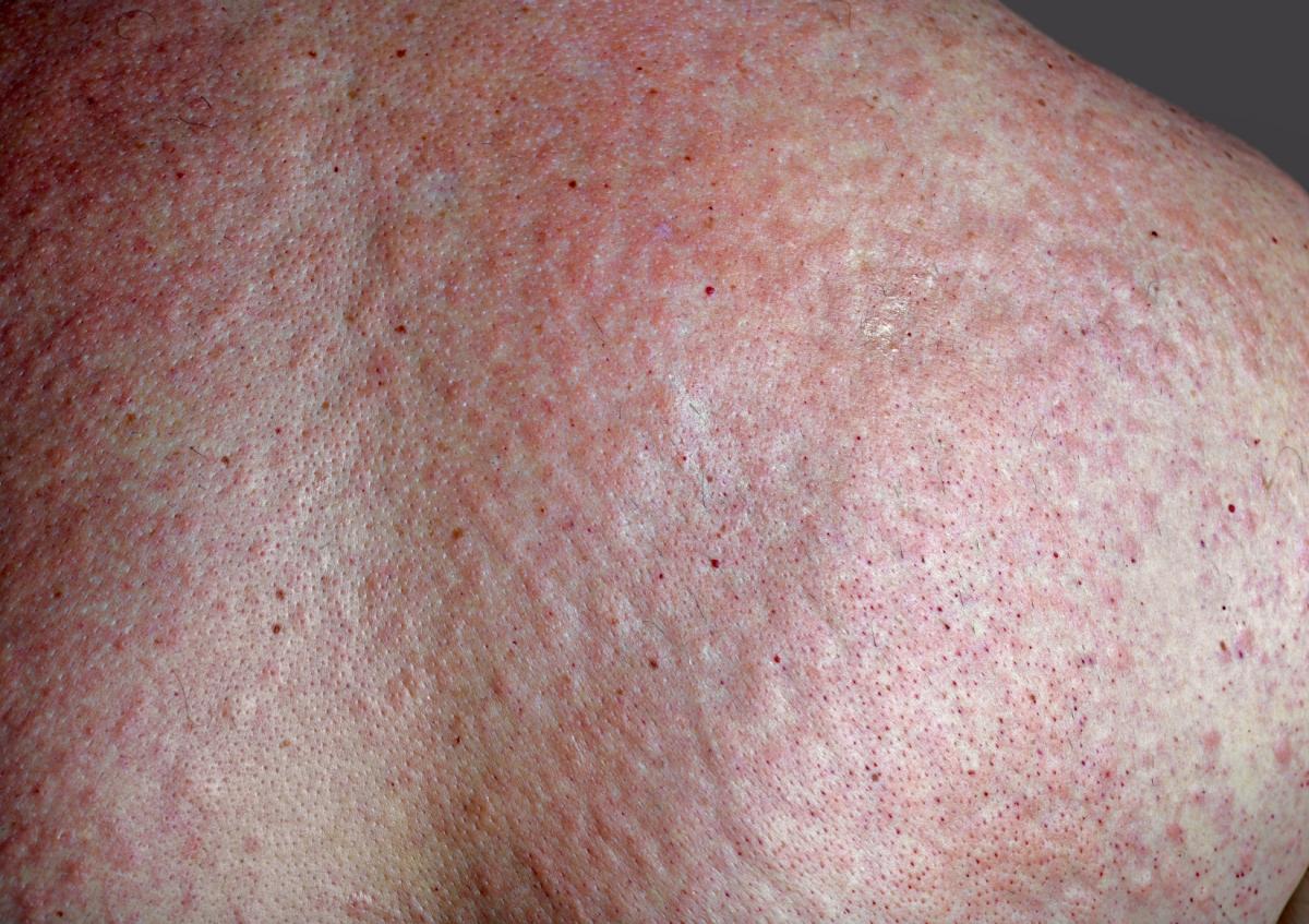 rash vibration hives