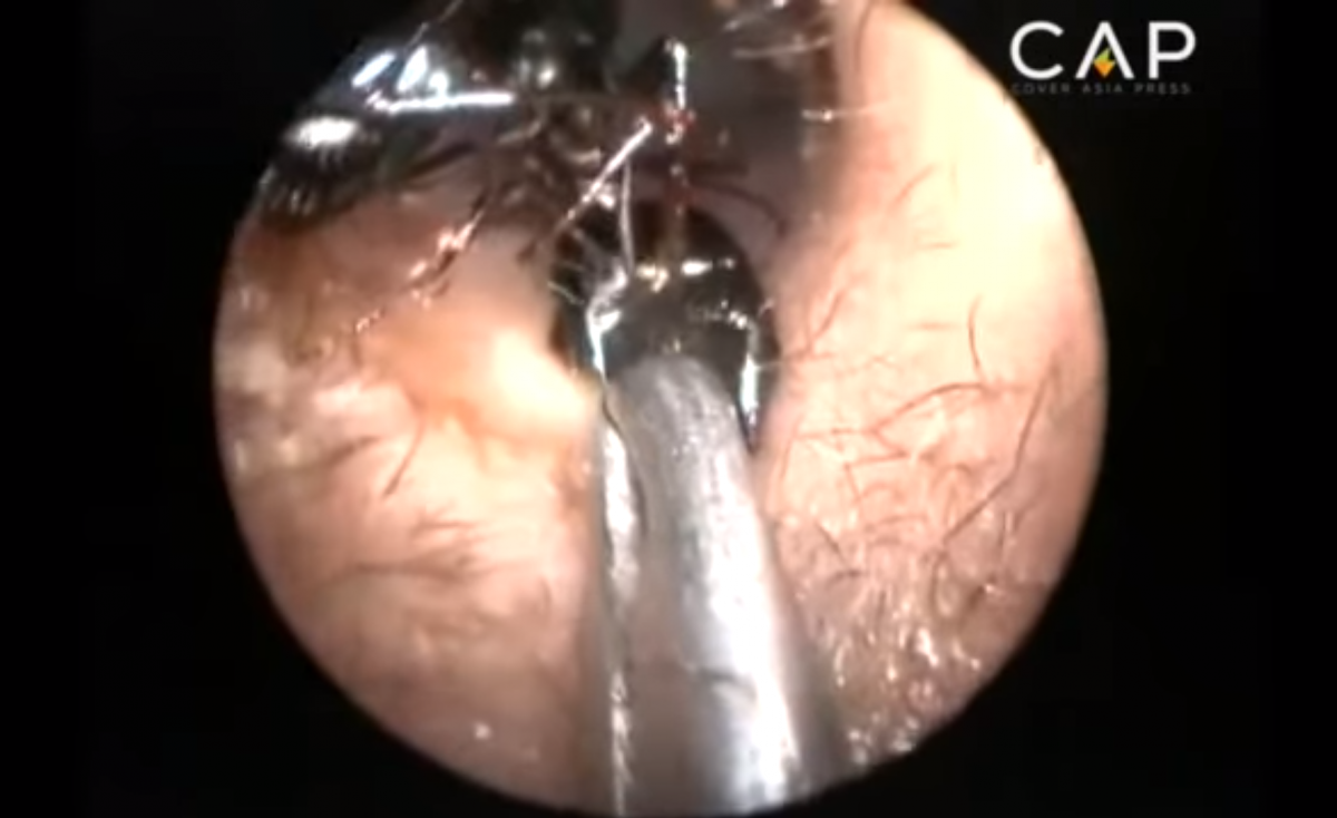 Ants being removed in ear