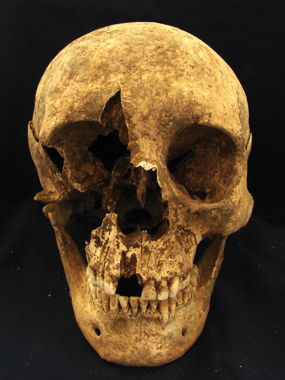 Excavated skull