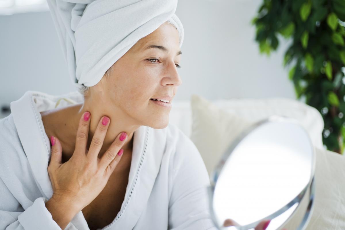 how to treat melasma