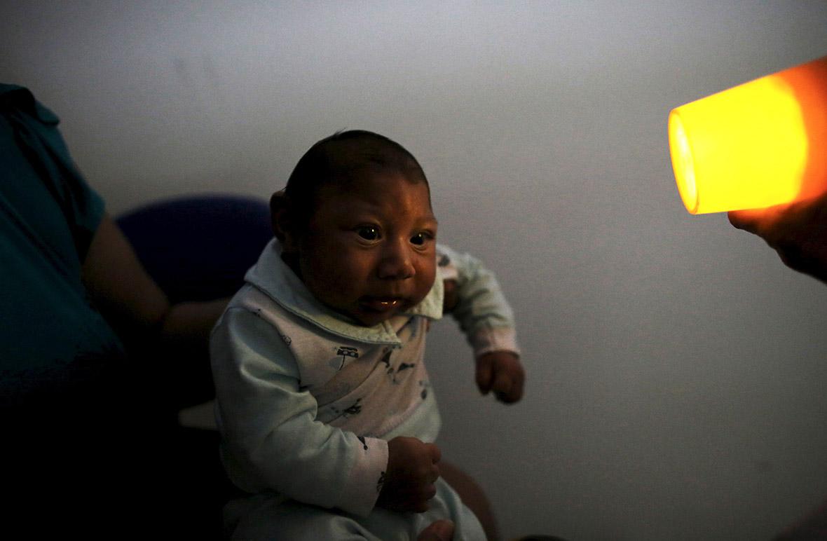 zika microcephaly