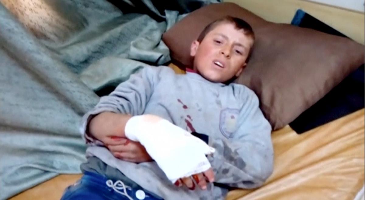 A boy lies on a bed with an injured hand