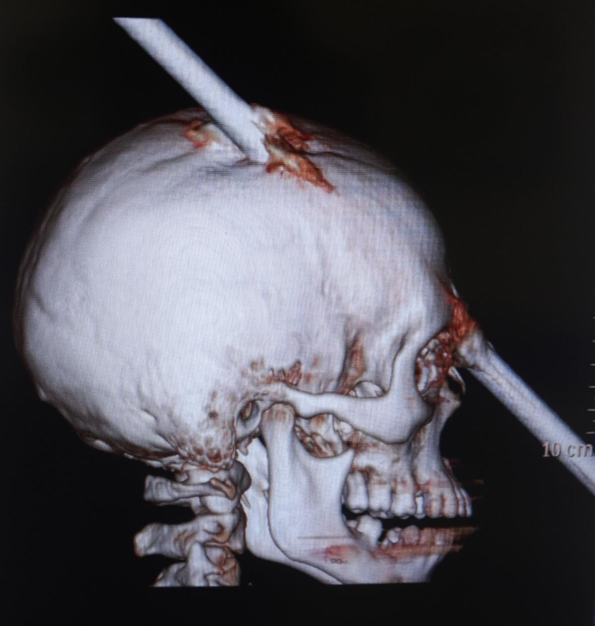 rod through skull