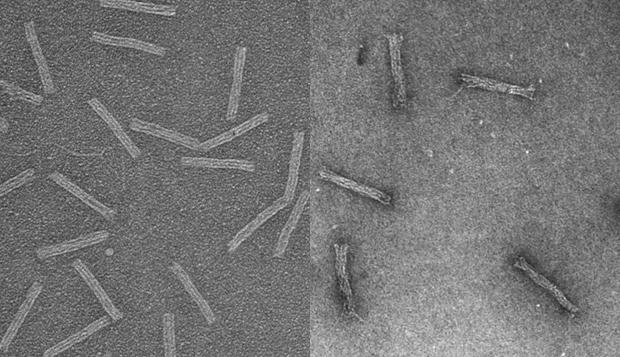 Cancer-killing drug infiltrates leukaemia cell