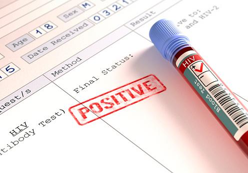 HIV Israel Truvada