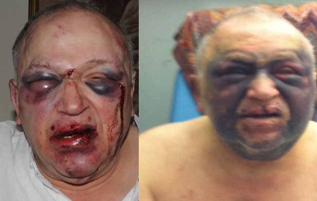Lost Keys To Car >> Manchester: Shocking photos of 77-year-old man battered at home before Bvlgari bracelet stolen