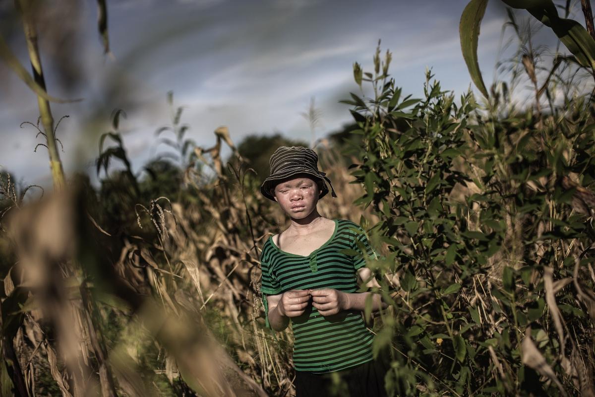 Albinism in Malawi
