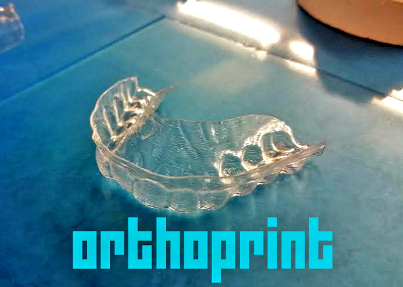 3D printed clear aligner braces