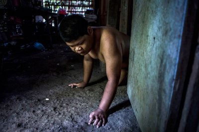 Indonesia mentally ill shackled