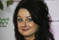Marian Keyes risked life from laser