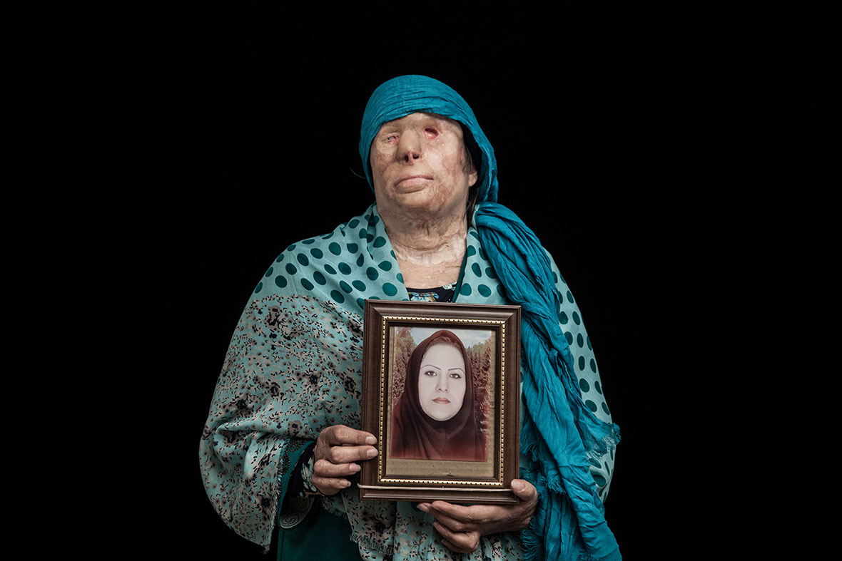 Incredibly powerful portraits of acid attack victims win grand prize