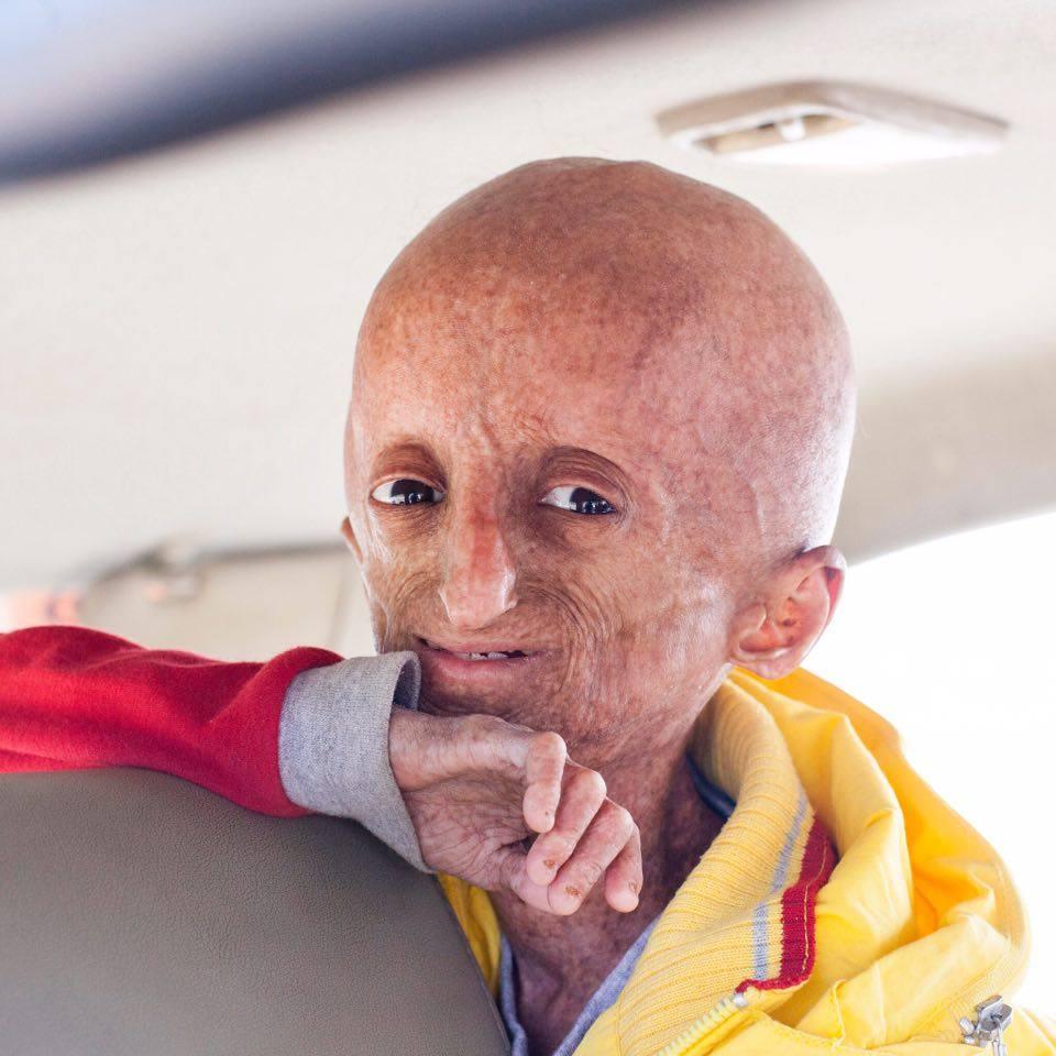 India progeria Nihal Bitla