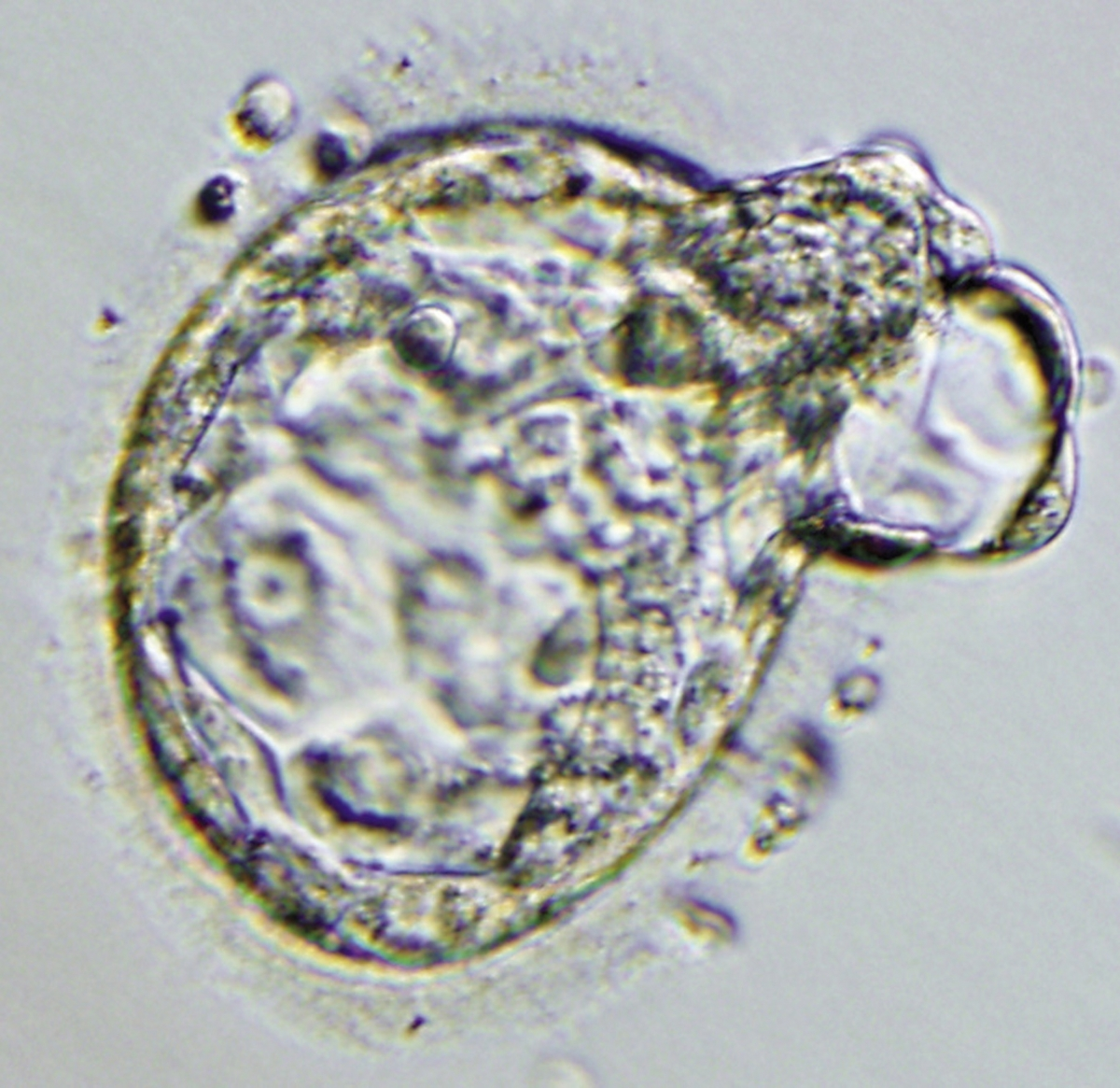 Human embryo