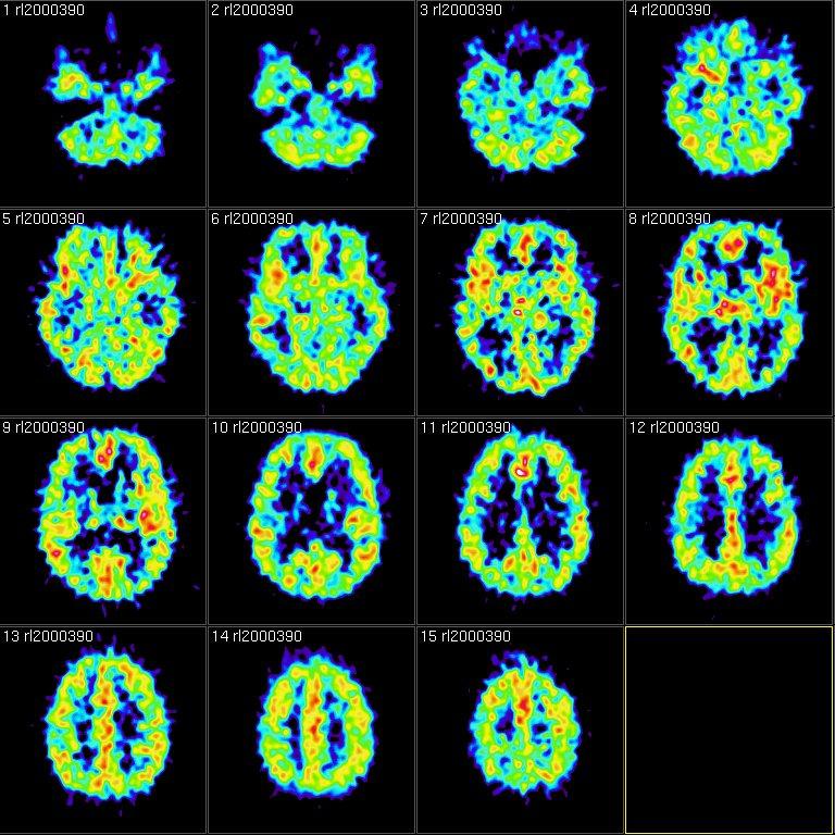 fMRI scans