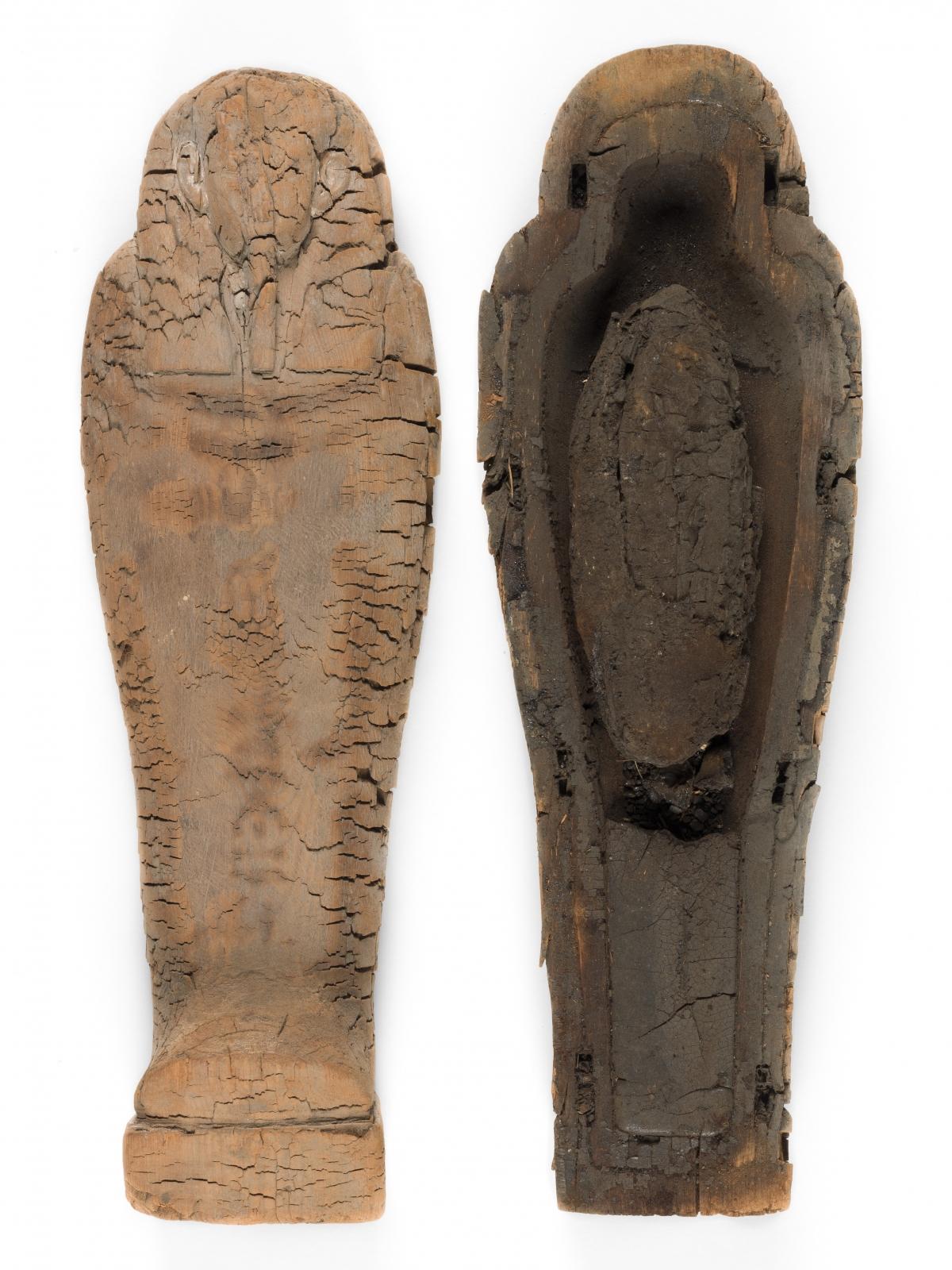 mummified foetus