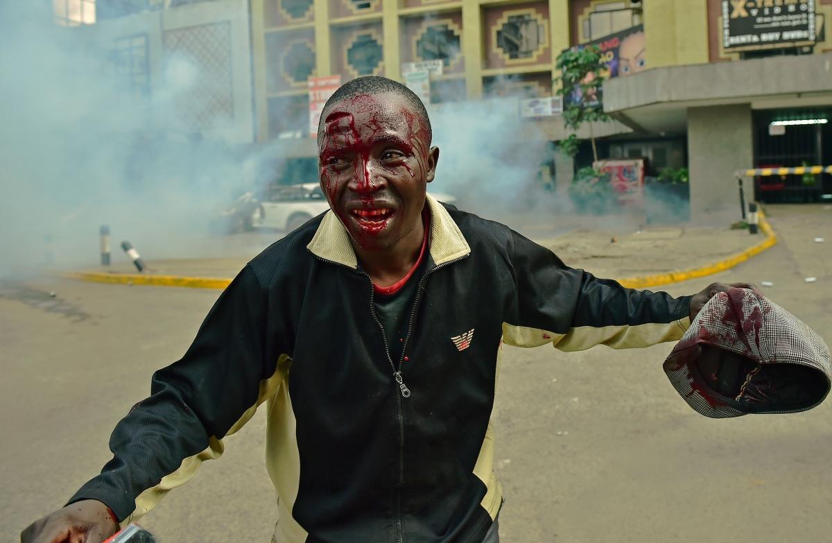 Injured protester in Nairobi