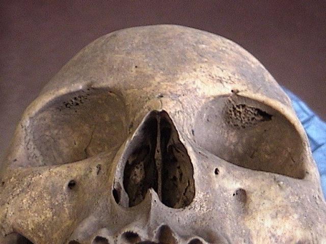 skull iron deficiency