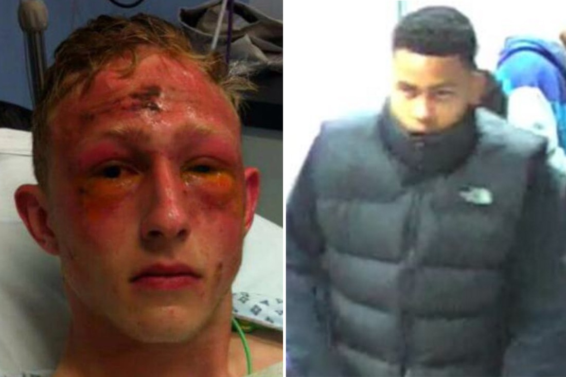 Essex acid attack