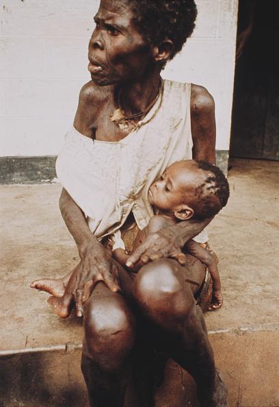 Starvation during 1967-1970 Biafran war