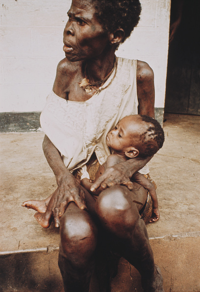 Starvation during 1967-1970 Biafran war