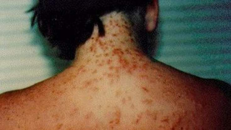 Outbreak of sea lice in Florida