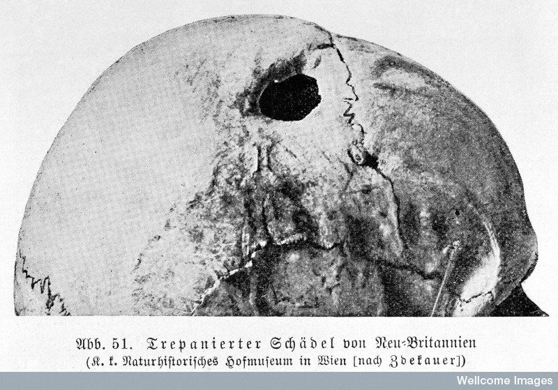 trepanation skull brain