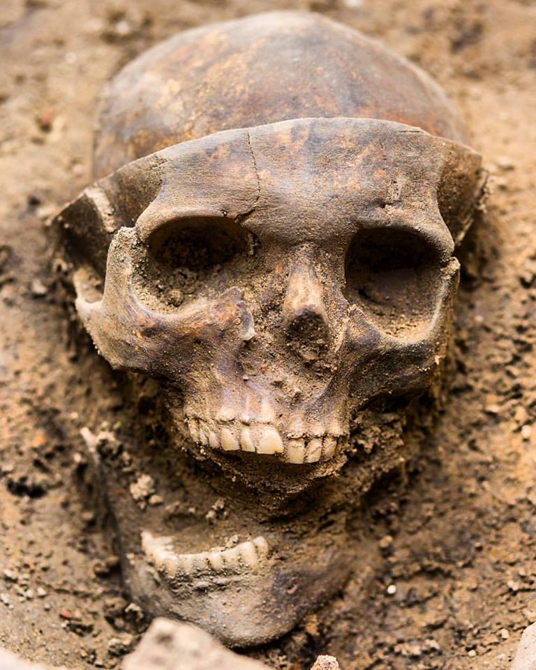 skeleton trepanation