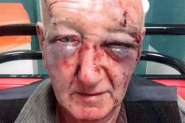 Derek Laidlaw Oldham OAP assault 2016