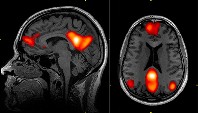 15 years of fMRI brain research has been invalidated by a ...