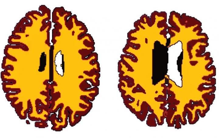 Brain ageing