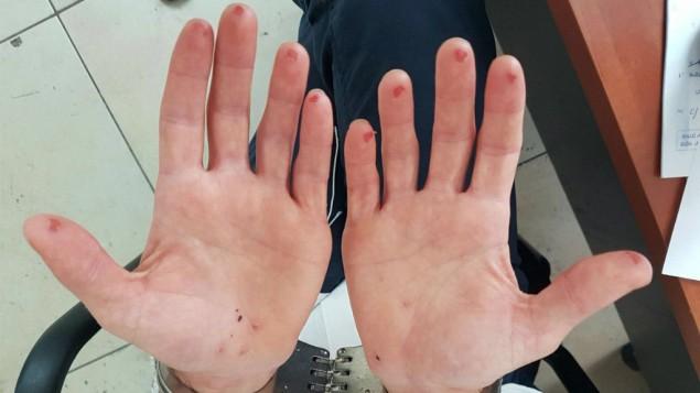 man cuts off fingertips