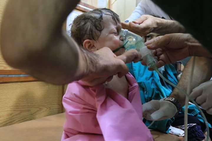 Child injured Aleppo