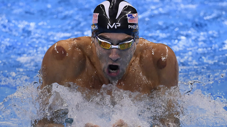 What actually is the the Olympic craze 'cupping'?