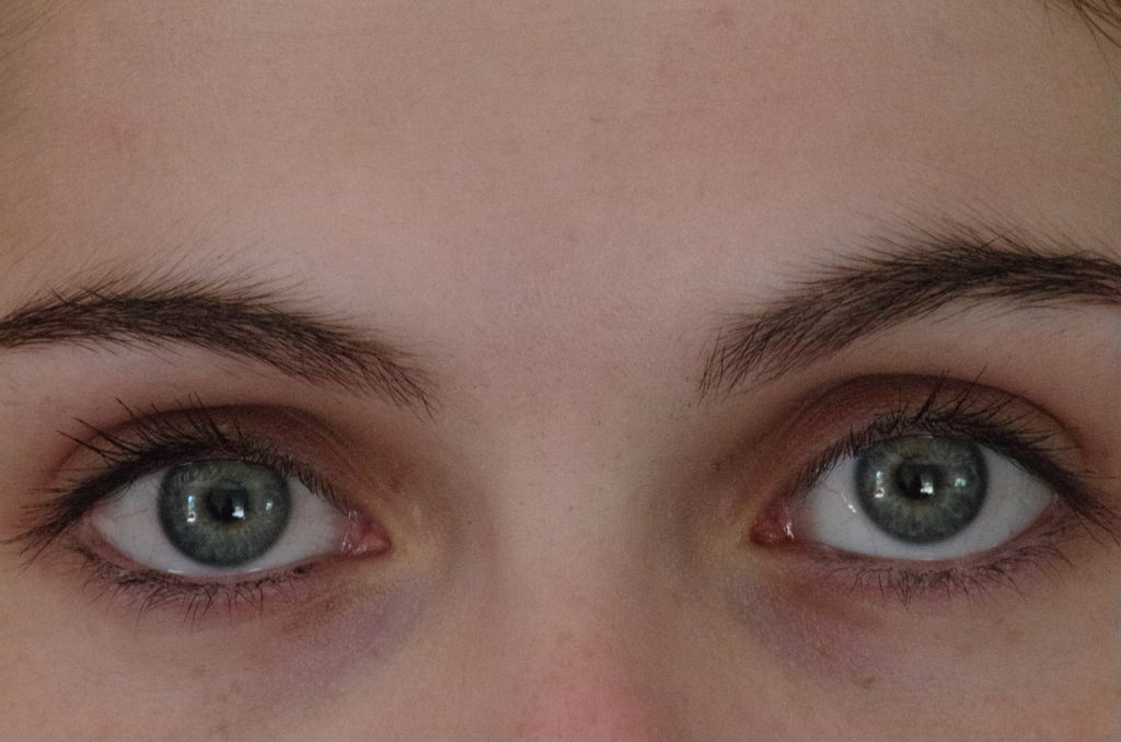 eyes cornea transplant