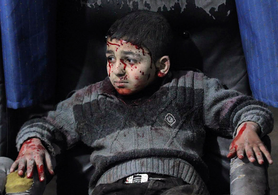 Syria children injured air strikes