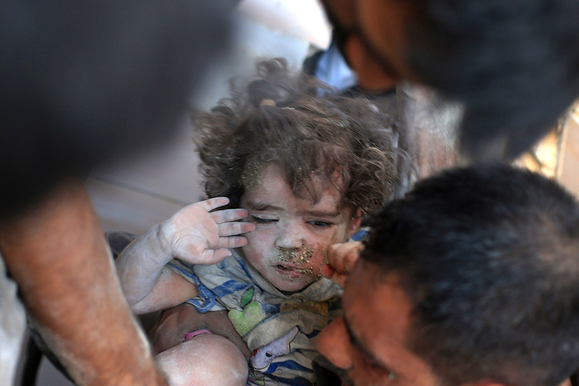 Syria children injured air strikes