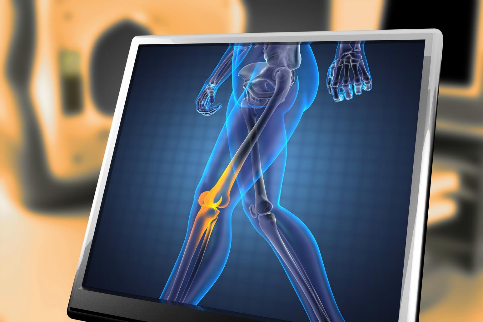 Scan of leg bones in the body