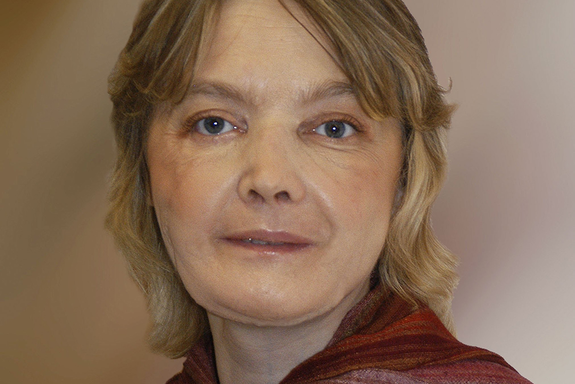 Woman who received world's first face transplant dies
