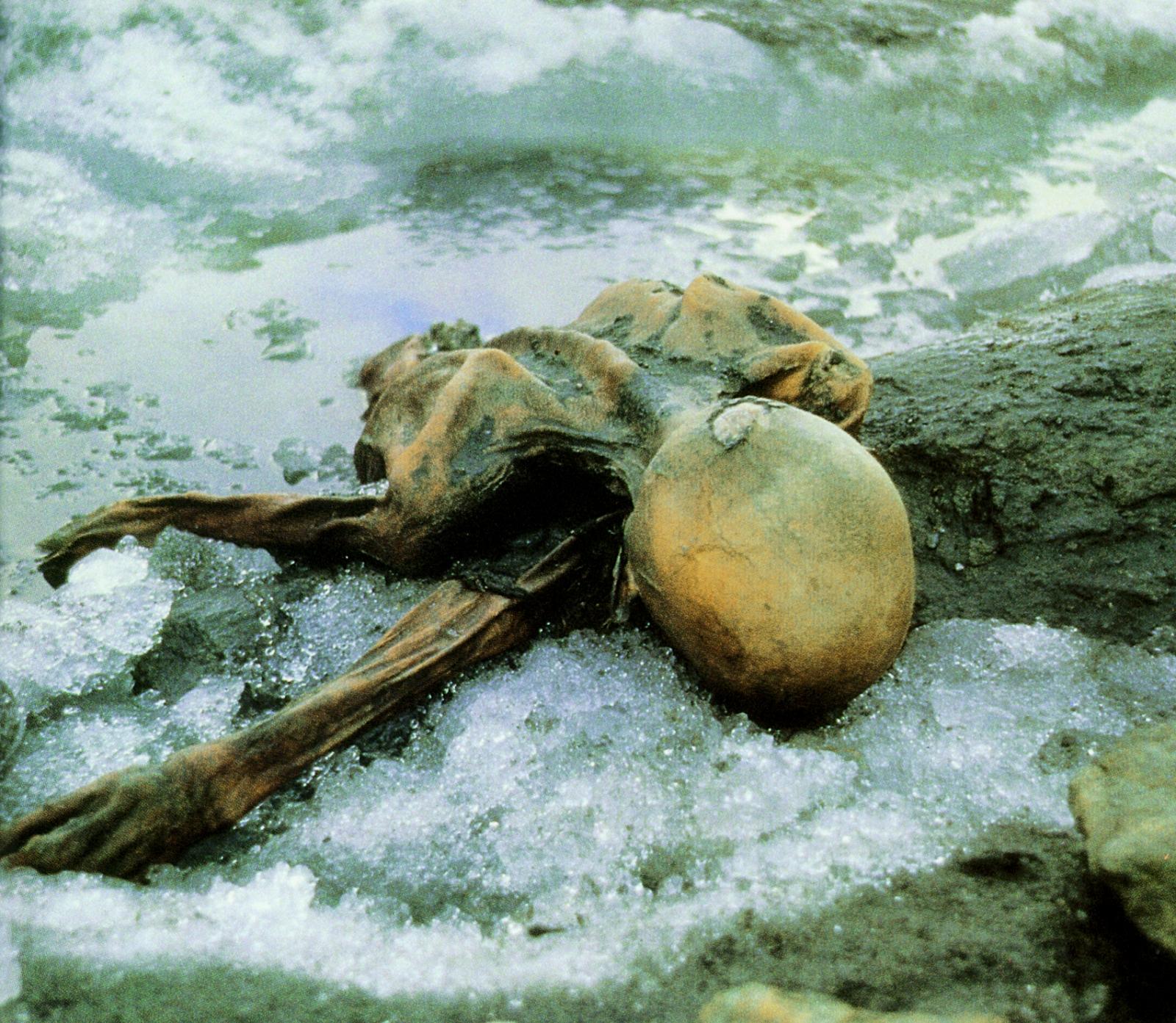 Otzi the iceman