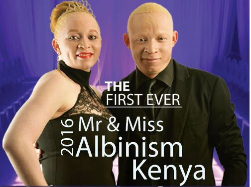 Mr & Miss Albinism