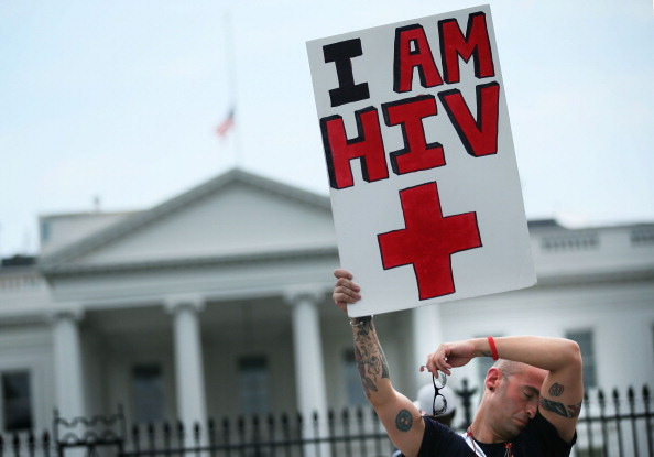 HIV AIDS US