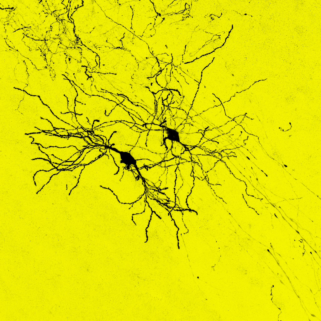 transplanted neurons
