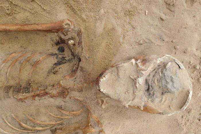 Skeleton cholera