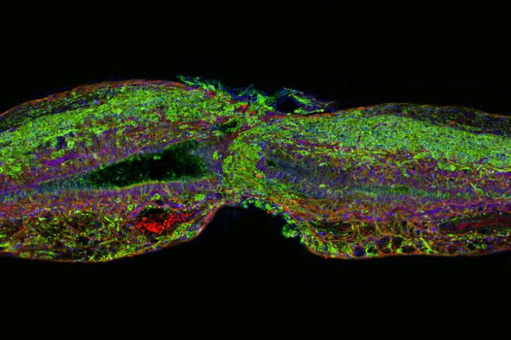 Zebrafish spinal cord